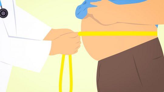 Fedtsugning af fedtdepoter på hals